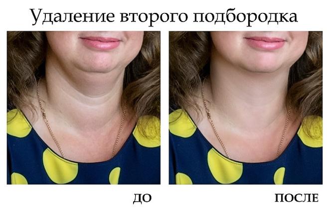Портретная ретушь - удалю второй подбородокОбработка изображений<br>Портретная ретушь 1-й фотографии: - удалю дефекты кожи, - удалю второй подбородок и мешки под глазами, - уменьшу морщины Качество результата напрямую зависит от качества фотографии. Присылайте фото в большом разрешении или формате RAW или TIFF. Результатом будет: Фотография в формате * . JPG в двух вариантах - для печати (неизмененный размер фотографии) - для интернета (1280 пикселей по большей стороне)<br>