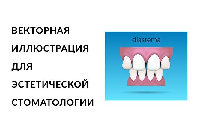 Стоматологические векторные иллюстрации 1 - kwork.ru