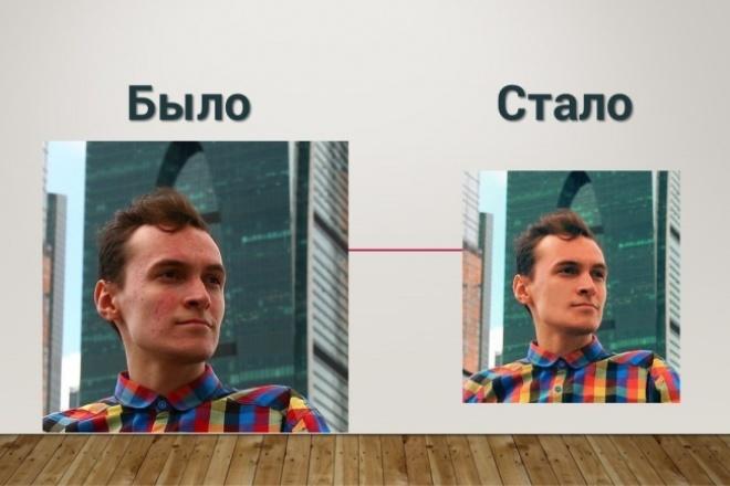 Удалю прыщи с фотографии 1 - kwork.ru