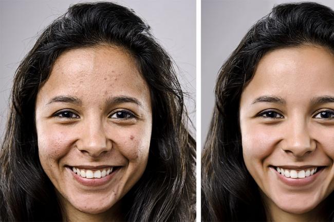 Ретушь кожи, обработка портретной фотографии, убрать прыщиОбработка изображений<br>Профессиональная ретушь кожи лица. Забрать недостатки кожи. Убрать прыщи, шрамы, растяжки. Минус 10- 20 кг, минус 10 - 20 лет.<br>